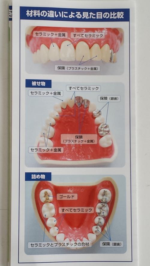 足利市歯科医療情報 歯の被せ物の種類