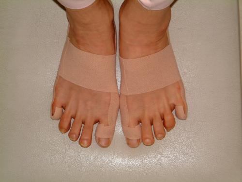 外反母趾・内反小趾のテーピング方法