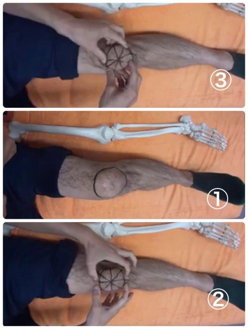 千歳烏山で半月板損傷リハビリマッサージはオリンピア鍼灸整骨院
