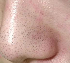 酵素洗顔が「肌バリア」を破壊する
