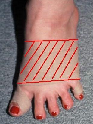 ランニングによる短腓骨筋腱付着部炎