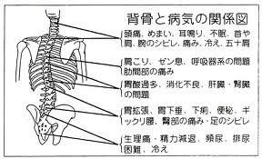 神経痛、坐骨神経の痛み、頭痛、めまい
