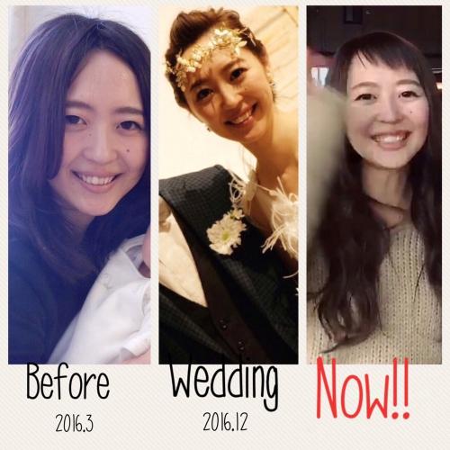 花嫁❤ブライダルエステ❤