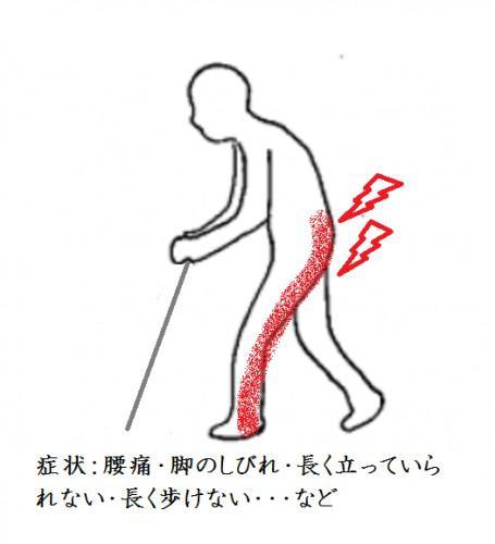 腰部脊柱管狭窄症の治療とは