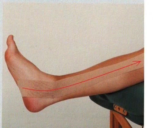ランニングによる後脛骨筋腱鞘炎
