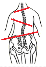 骨盤矯正の効果について