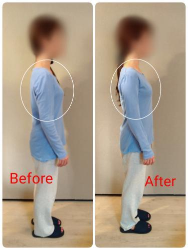 ブライダル美容整体・肩こりも改善