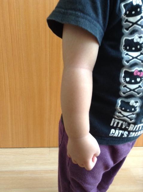 肘が外れた〜!1歳の子供治療