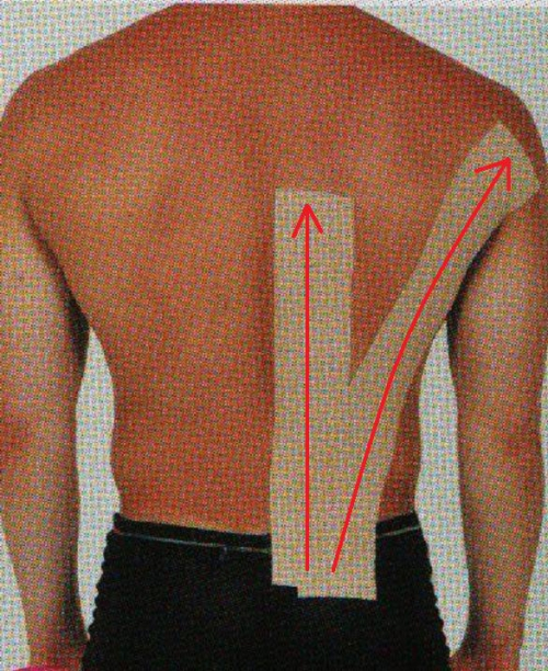 背中の痛みのテーピング処置