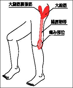 【運動器系疾患】腸脛靱帯炎 其の2