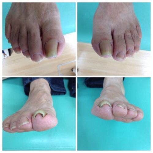 豊明市の巻き爪治療、皮膚科で…