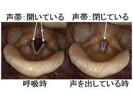 声帯を鍛える、声帯ポリープを作らない発声矯正体験レッスン