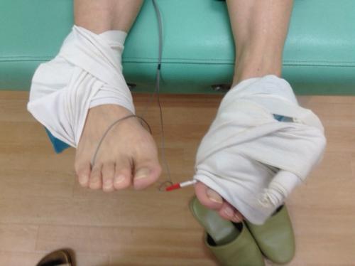 捻挫の治療、しかも両足!