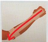 テニス肘の対処